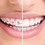 9 consejos al empezar ortodoncia