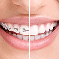 9 Consejos al empezar con Ortodoncia