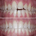 Caso de ortodoncia invisible en 7 meses