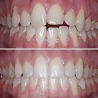 Ortodoncia Invisible en 7 meses