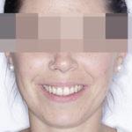 innovació ortodoncia invisible