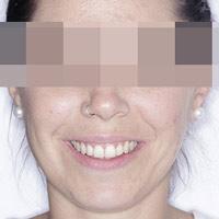 Innovación en ortodoncia Invisible