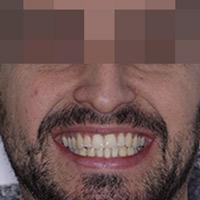 Mejorar la estética de la sonrisa
