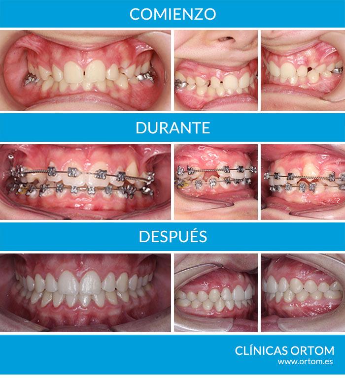 Pérdida prematura de dientes de leche