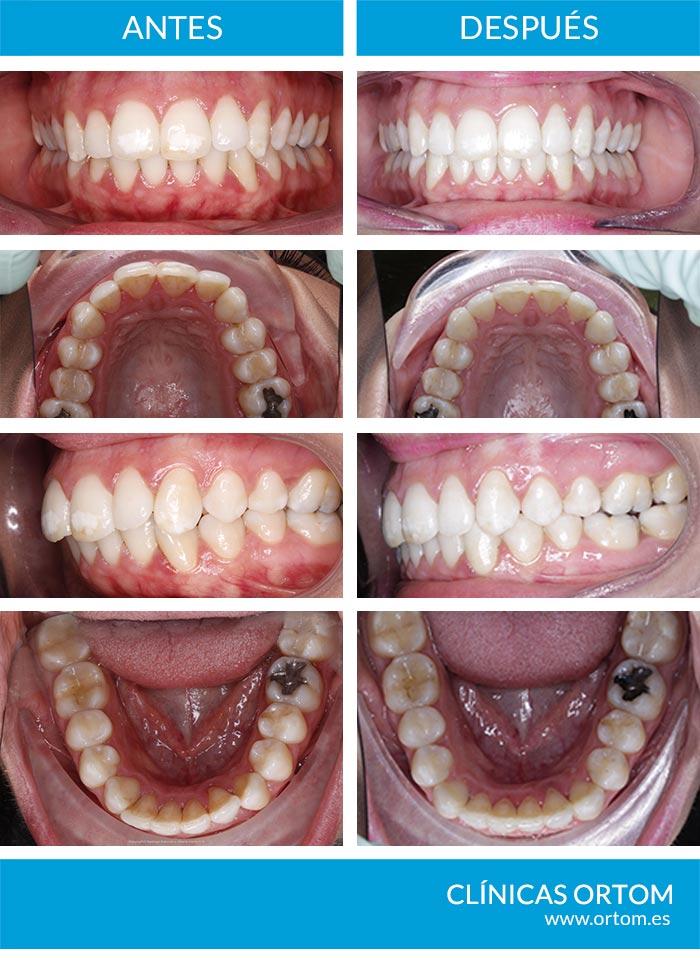 ortodoncia invisible efectiva