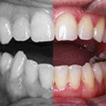caso de Retratamiento de Ortodoncia