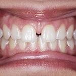 diastema frenillo lingual