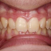 Ortodoncia con Aparatología Fija Multibrackets