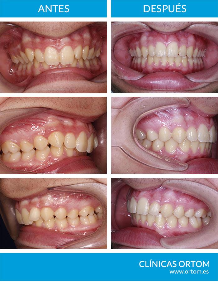 Ortodoncia con Aparatologia Fija Multibrackets