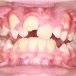 cuándo se necesita ortodoncia