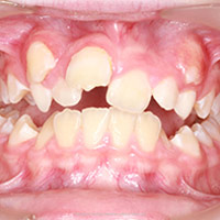 ¿Cuándo se necesita ortodoncia?
