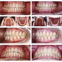 ¿Funciona la Ortodoncia Invisible para todas las maloclusiones?