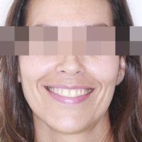 Importancia de la boca en la estética de nuestra cara