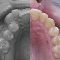 Quiero una boca perfecta, ¿Es posible conseguirla solo con ortodoncia?