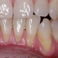 Ortodoncia y recesión gingival