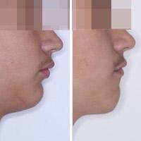 ¿Por qué crece la mandíbula?
