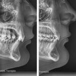 ortodoncia y posición de los labios