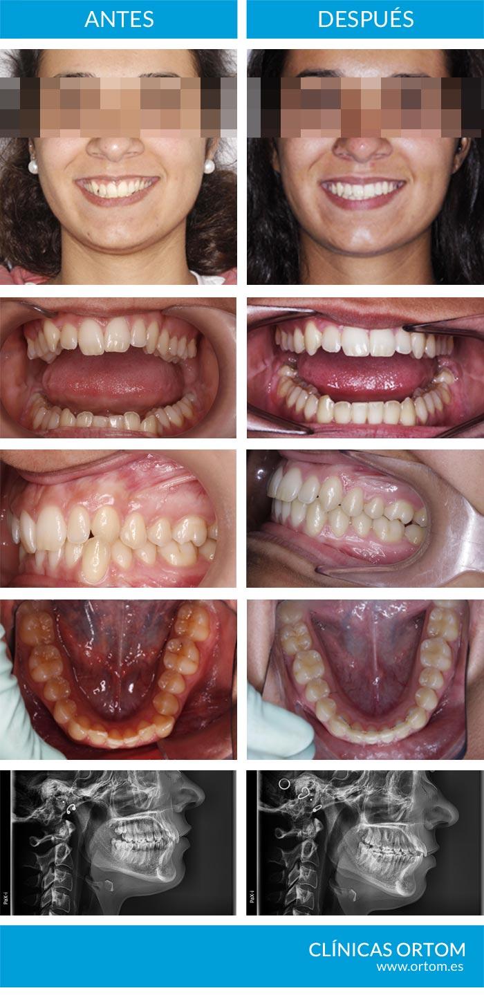 ortodoncia en casos sencillos