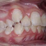 Extraer dientes antes de la ortodoncia